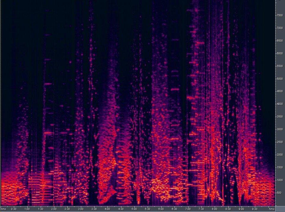 wires sonogram